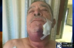 72-year-old attacked, via screengrab